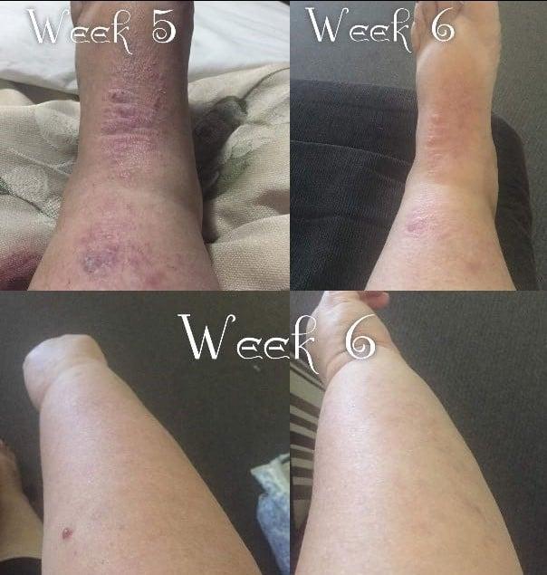 Eczema-results